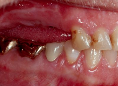 Smile Gallery - Before Treatment - Dental Implants