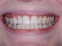 Smile Gallery - After Treatment - Implant