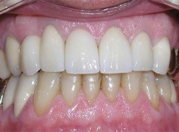 Smile Gallery - After Treatment - Full Mouth Reconstruction