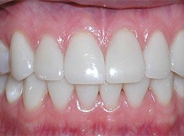 Smile Gallery - After Treatment - Porcelain Veneers