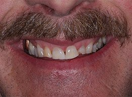 Smile Gallery - Before Treatment - Full Mouth Reconstrction