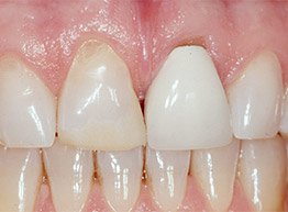 Smile Gallery - Before Treatment - Porcelain Veneers