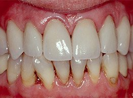 Smile Gallery - After Treatment - PFM
