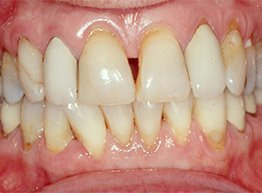 Smile Gallery - Before Treatment - PFM