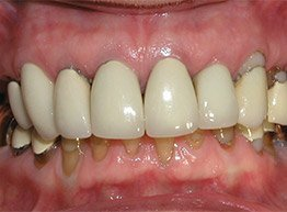 Smile Gallery - Before Treatment - Full Mouth Reconstruction