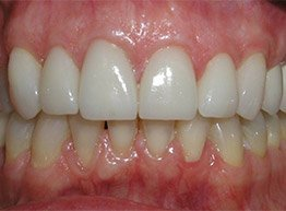 Smile Gallery - After Treatment - Ceramic Crowns